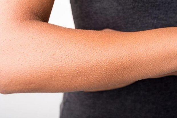 Как избавиться от гусиной кожи на руках? Время возвращать красоту