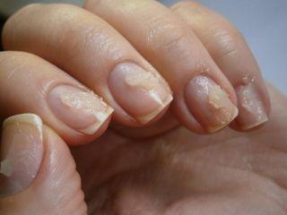 Как восстановить ногти после наращивания? Советы на все случаи