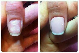 Как выравнивать ногтевую пластину базой гель лака? Экстренное восстановление