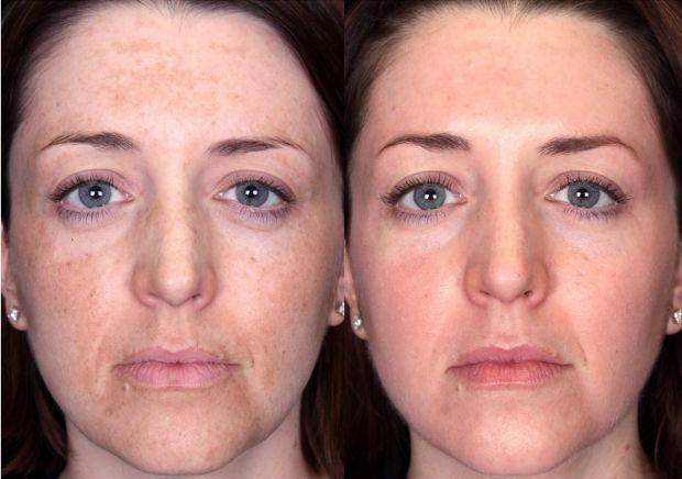 Польза и вред пилинга лица. Подробный разбор вопроса