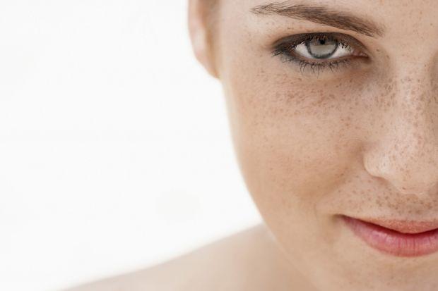 Как избавиться от пигментных пятен на лице и руках? Способы и причины